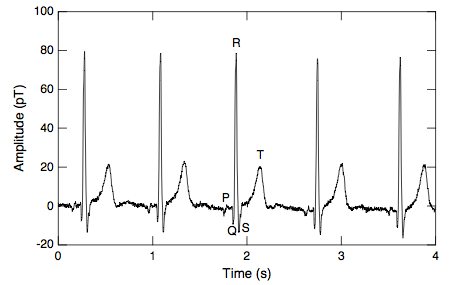 Real-time magnetocardiogram measured with a HTS magnetometer at 77 K inside a magnetically shielded room.